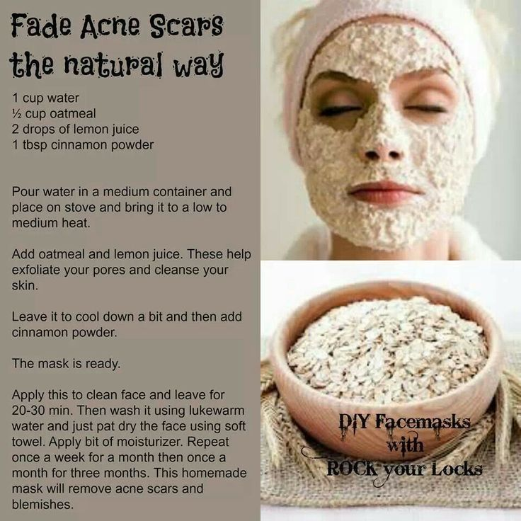 Naturally Fade Acne Scars Pictures, Photos, and Images for ...