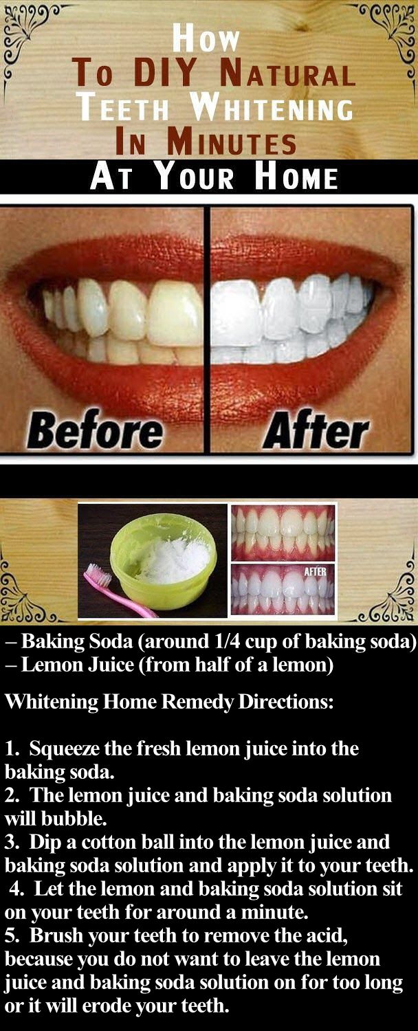 Diy Natural Teeth Whitening In Minutes At Your Home Pictures Photos