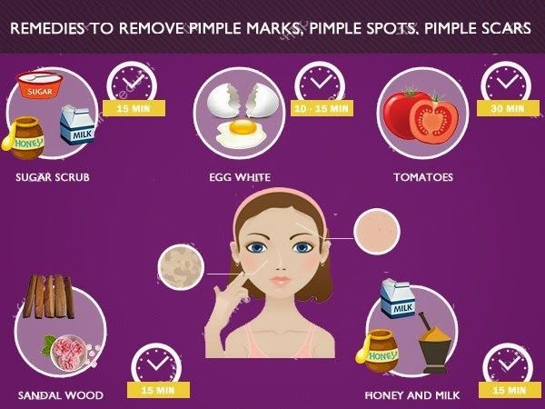 Home Remedies To Remove Acne Scars Pictures Photos And Images