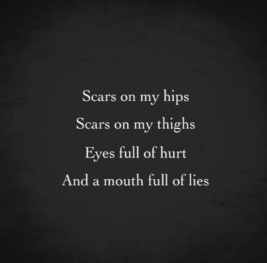 Hidden Suicidal Quotes: Scars On My Hips, Scars On My Thighs, Eyes Full Of Hurt