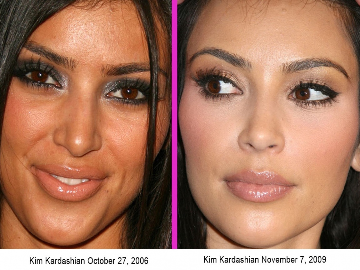 Before And After Kim Kardashian Surgery Or Not Pictures
