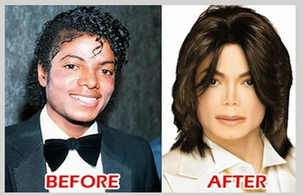 Before And After Surgery (clearly We Know) Michael Jackson ...