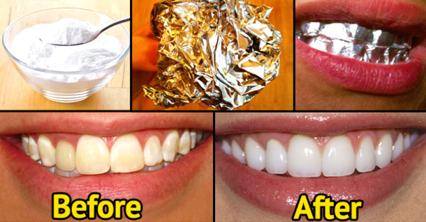 You Would Never Believe That Wrapping Your Teeth With Aluminum Foil