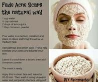 naturally fade acne scars