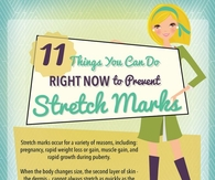 11 Ways To Prevent Stretch Marks