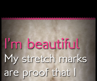 Stretch Marks Pictures Photos Images And Pics For Facebook